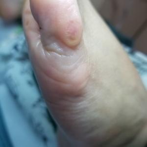 小指の外側のウオノメが痛い