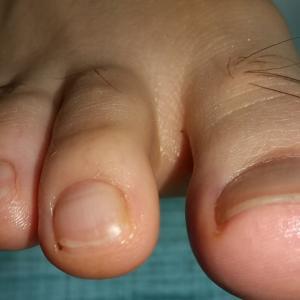 定期的な爪のケア