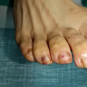 抗がん剤治療後の爪