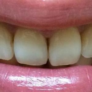 前歯中央のすき間を治す!