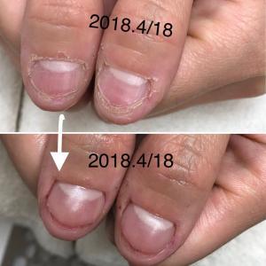 深爪改善に向けて①