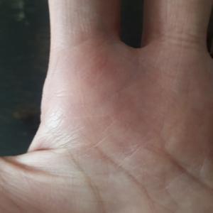 両手とも離れ型のワタシ