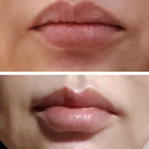 ヒアルロン酸リップで可愛い唇に