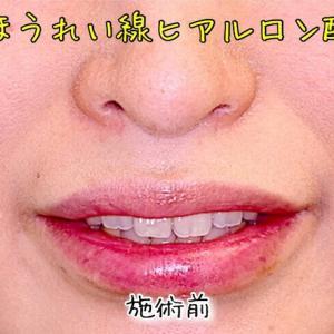 ほうれい線にヒアルロン酸を打つと、口元の前突が目立たなくなる。