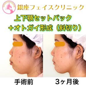 【症例写真】上下顎セットバック 〜努力してもどうにもならないから手術する。〜