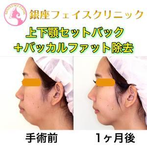 【症例写真】上下顎セットバックによる横顔の変化(顎が前に出る)