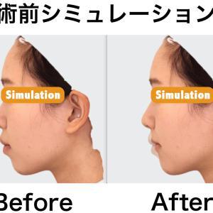 上下顎セットバック+オトガイ形成|術前シミュレーションについて