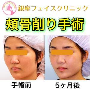 【症例写真】頬骨削り手術(術後5ヶ月目)