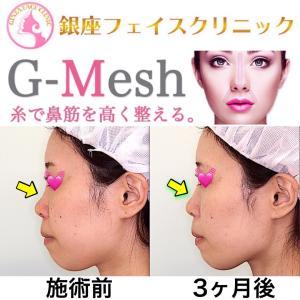 Gメッシュ側面