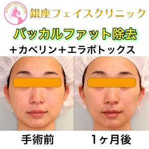 【症例写真】バッカルファット+脂肪溶解注射(カベリン)+エラボトックス|術後1ヶ月目