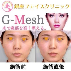 Gメッシュ|鼻筋を通す糸の施術|直後の様子