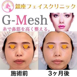 【症例写真】「Gメッシュ」で鼻筋を整える。