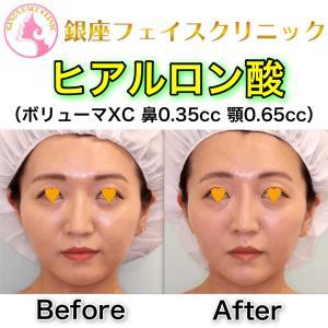 【症例写真】鼻と顎のヒアルロン酸(正面)