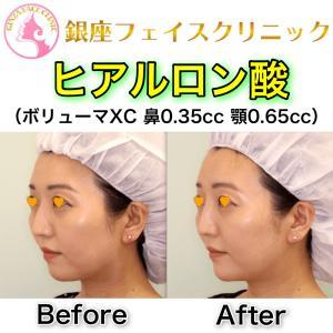 【症例写真】鼻と顎のヒアルロン酸(斜め)