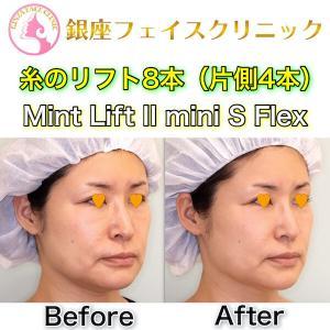 【症例写真】糸のリフト8本(片側4本)|Mint Lift II mini S flex