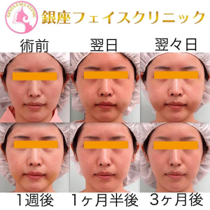 【脱「整形顔」宣言】頬骨削り(アーチインフラクチャー&ボディ削り)