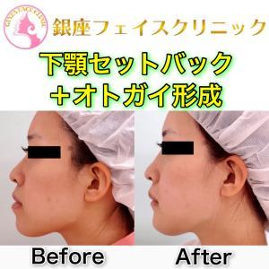 軽度の受け口に対する「下顎セットバック +オトガイ形成」の症例写真