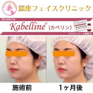 続・脂肪溶解注射(カベリン)の症例写真