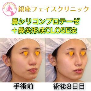 「コロナ禍に美容整形を受けるのが悪いことですか?」(鼻プロテーゼ+鼻形成CLOSE法)