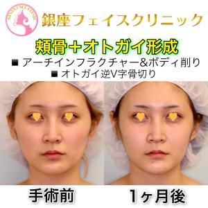 【症例写真】頬骨+オトガイ形成(1ヶ月後)