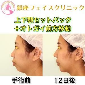「上下顎セットバック+オトガイ前方移動」の症例写真(ビフォーアフター12日後)