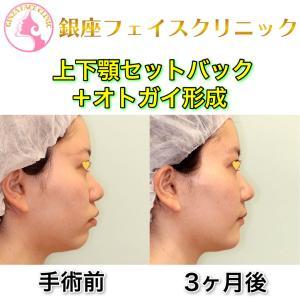 「上下顎セットバック+オトガイ形成」の症例写真(ビフォーアフター3ヶ月後)