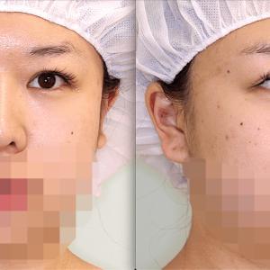 「お顔の脂肪吸引ってどれくらい腫れますか?」