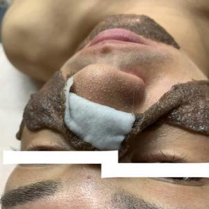 毛穴ケア幹細胞コース