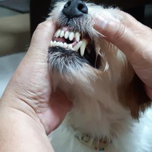 歯槽膿漏。