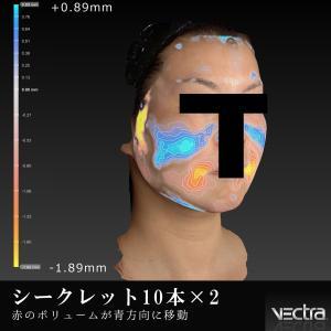 シークレットリフト☆最新機器での解析☆