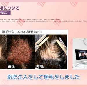 頭部傷痕(ハゲてしまったところ)の自毛植毛