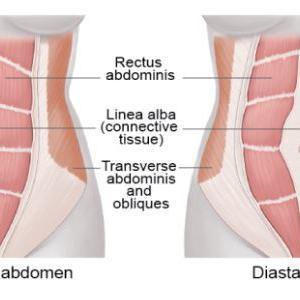 理学療法-妊娠出産に伴う腹筋破裂 DIASTASIS RECTI