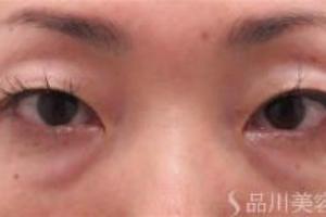 埋没法と目の下の脂肪取りの手術を同時に行う