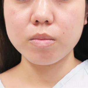 頬の脂肪吸引1か月後