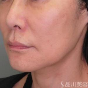 45歳の美肌アモーレ