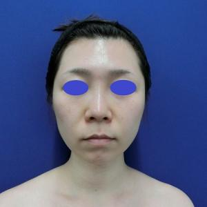小顔手術を脂肪吸引とバッカルファット除去手術で◎ LIPO DESIGN by SHUKATO®