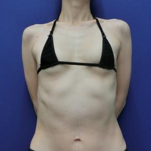 脂肪注入豊胸で形もサイズアップもイイトコ取りです◎LIPO DESIGN by SHUKATO®