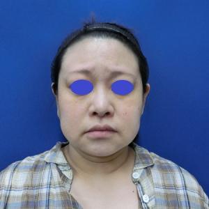 バッカルファット除去でお顔の印象が変わった若返り症例です◎ LIPO DESIGN by SK®