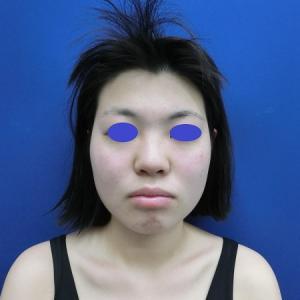 小顔を目指す2大方法@ホホアゴ脂肪吸引とバッカルファットと。LIPO DESIGN by SK®
