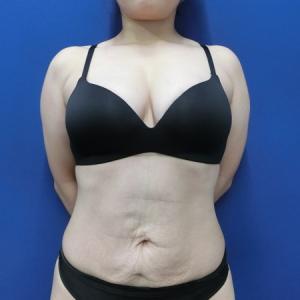 海外で受けたシリコンバッグを抜いて脂肪注入豊胸で置き換えます◎ LDbSK®
