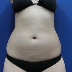 お腹を少しでも変化させるには部分痩せ目的の脂肪吸引です◎ LIPO DESIGN by SK®