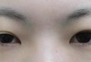 目頭切開、目の上の脂肪取り、フォーエヴァー二重複合手術です◎LIPO DESIGN by SK®