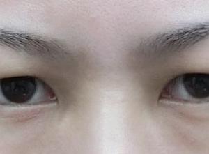 幅を少し変えるだけで大きく印象の変わった目の上脂肪取り+GL=グランドループ埋没法二重手術◎