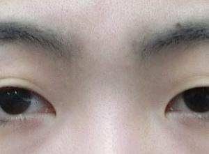【平行形】重い目ですがGL=グランドループ埋没法二重手術で腫れ少なく行います◎ LDbSK®