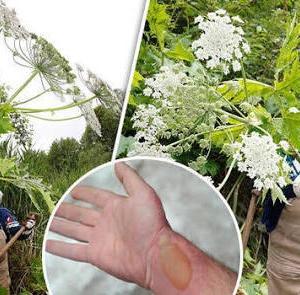 世の中にこんな凶悪な植物があるのね
