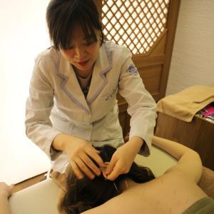 慢性頭痛は体の循環の問題!鍼治療で頭に血が回る回る~