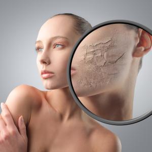 お肌の乾燥は老化の原因!?KDアクア注射で冬のカサカサ肌を予防しよう!