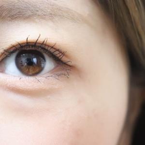 目の横幅を広げる目尻切開の手術~上手い医師や名医は?