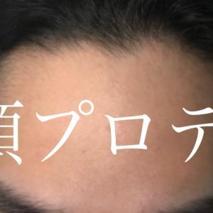 額プロテーゼの効果で堀が深くなる~口コミ考察