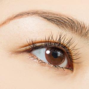 目の下の脂肪注入の失敗例を考察~下眼瞼脱脂や下眼瞼除皺術も比較